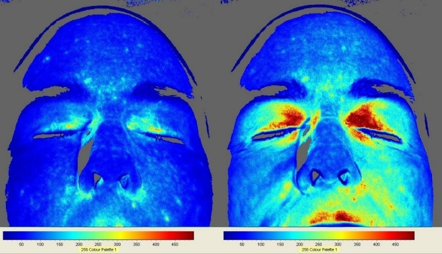 Improved facial circulation (right image) after 20 minutes of grounding, as documented by a Speckle Contrast Laser Imager (dark blue=lowest circulation; dark red=highest circulation). Image Source: Scientific Research Publishing
