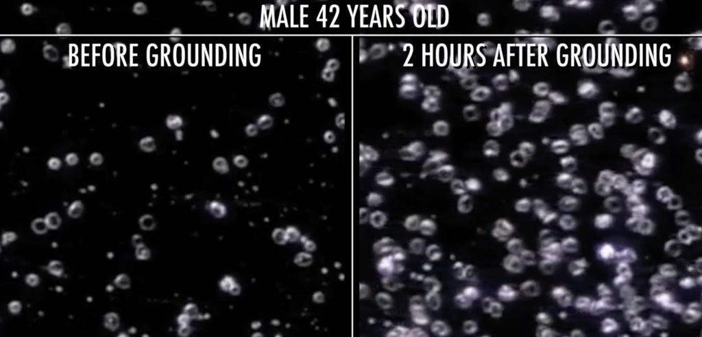 Blood sample before and after grounding